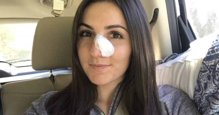 Lessons I Learned After Being Diagnosed with Skin Cancer